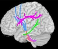 autisme_decouverte_de_nouvelles_specificites_structurelles_dans_le_cerveau
