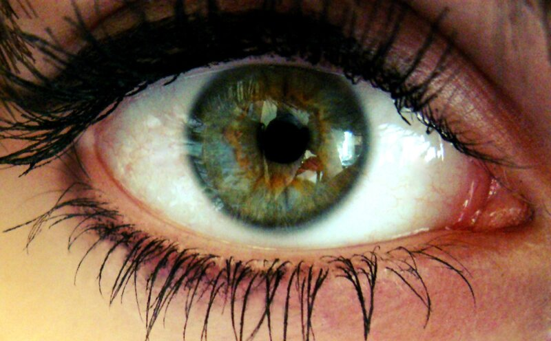 Iris_centralheterochromy