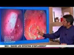 Maladie de Crohn : Un traitement innovant