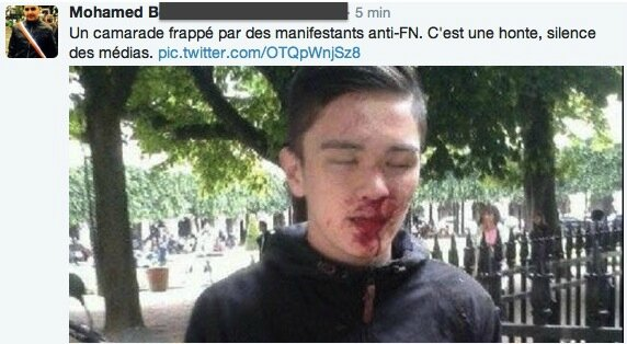 Agression-par-manifestants-anti-fn-blind