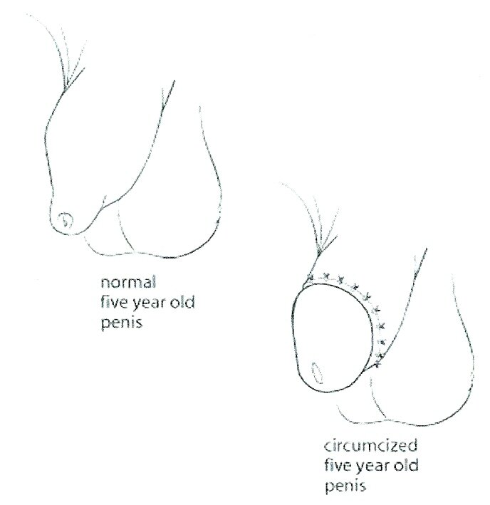 Pénis incirconcis et circoncis