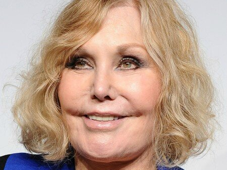 Kim-Novak-After-Plastic-Surgery-Has-Plumped-Cheeks