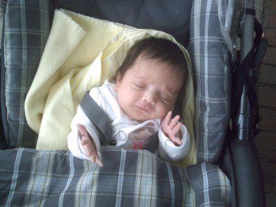 Melissa > Dandy Walker et Hydrocephalie diagnostique in-utero