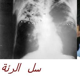 tuberculose_du_poumon