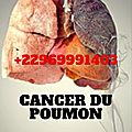 Cancer de poumon