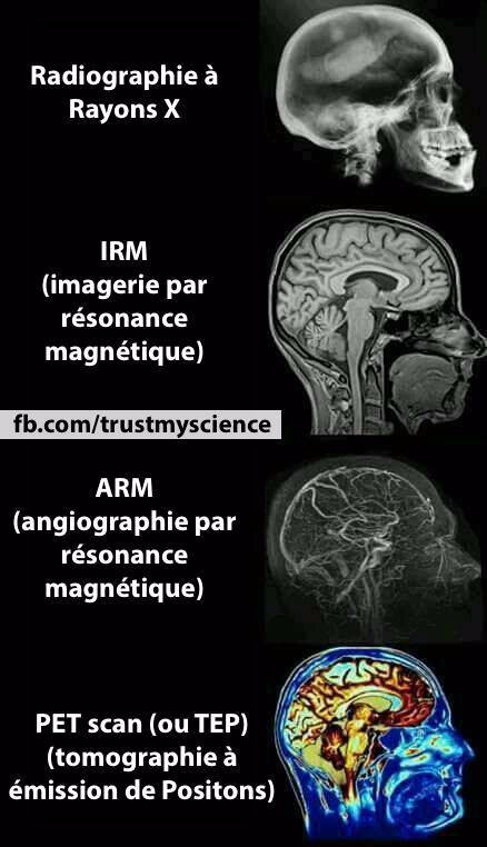 science_159