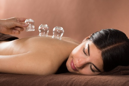 1481064171cupping-therapie-2