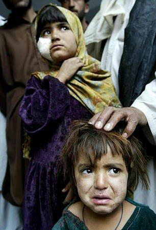 enfants blessés au Pakistan